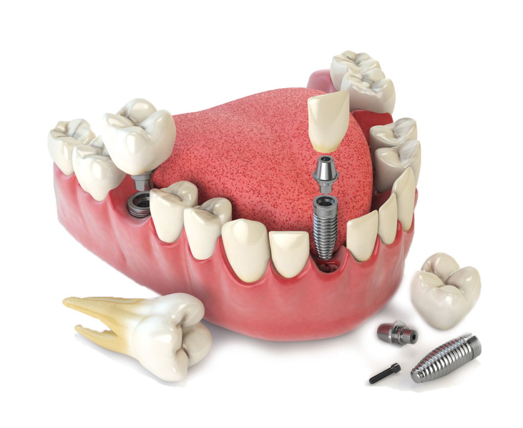 Implant model Cary NC