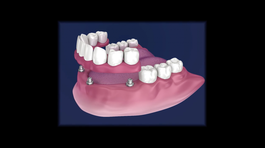 overdenture graphic showing denture snap on to dental implants